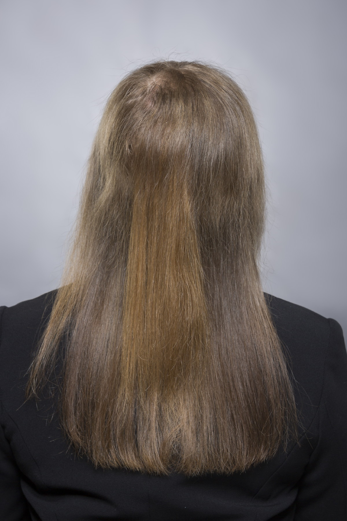 Sichtbar dünne haare kopfhaut feine Haare